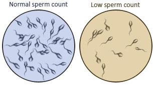 Minimum sperm count recommend you